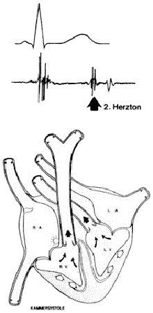 Medizintechnik Vorlesung | Phonokardiogramm | Entstehung